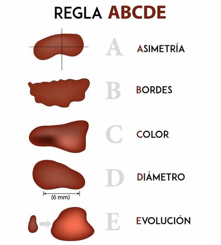 Regla ABCD prevención melanoma | Infografías | Pinterest | Medicina
