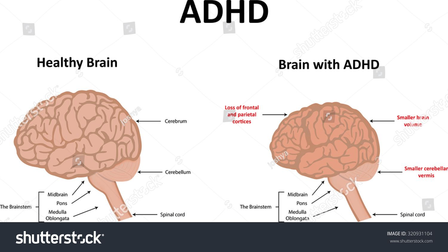 Image Result For Adhd Brain Anatomy Model Rh Com Diagram Of Your