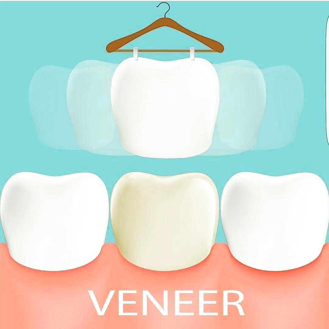 Veneers are a thin porcelain covering that changes the shape colour