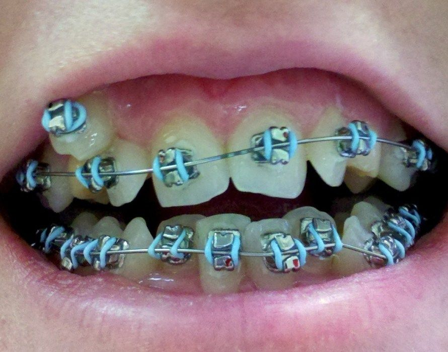 Dental Implants Near Me Emergency dental care, Emergency