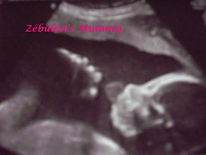 C'est le 1er Avril 2009 que tout a commencé , ce jour où j'ai fait un test de grossesse , ce jour où j'ai appris que j'allais enfin devenir maman ... Après 10 ans de vie commune avec Marichéri , nous étions les plus heureux du monde de pouvoir commencer...