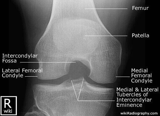 AP knee anatomy