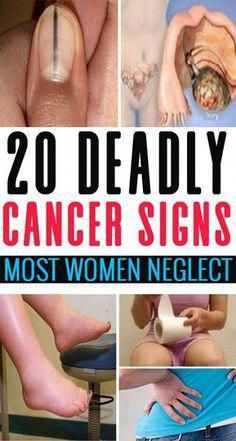 Nowadays, cancer has become the most widespread disease. Studies show that women often ignore these...