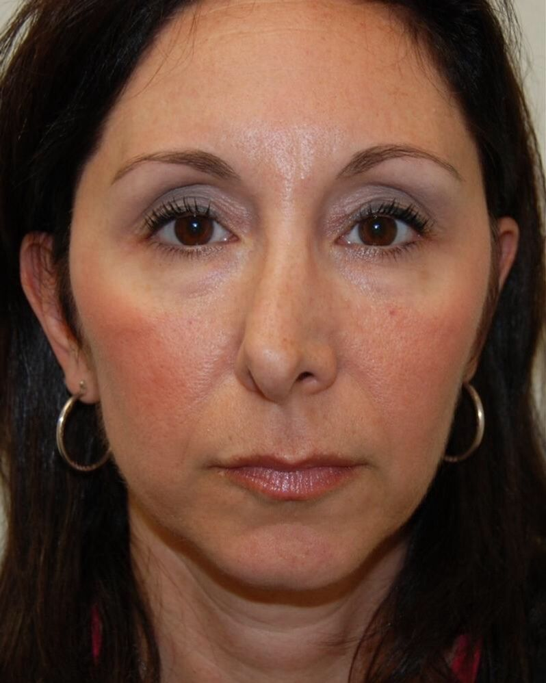 Crooked nose | Facial Features | Crooked nose, Rhinoplasty