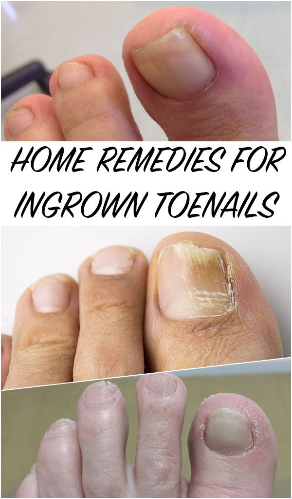 Home Remedies for Ingrown Toenails   Natural treatments, Remedies ...