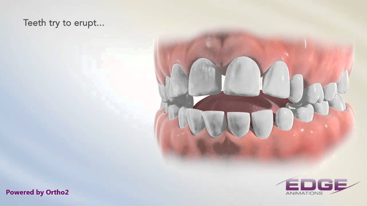 Edge Animations Tongue Thrust Speech language therapy