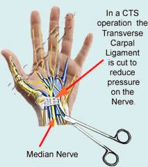 Open Carpal Tunnel Surgery Bing Images Health Carpal Tunnel