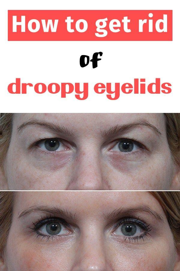 How to get rid of droopy eyelids   uroda   Pielęgnacja twarzy