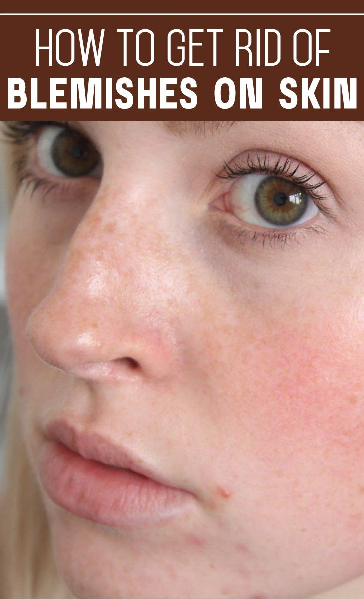 How to get rid of blemishes on skin cute parents spots