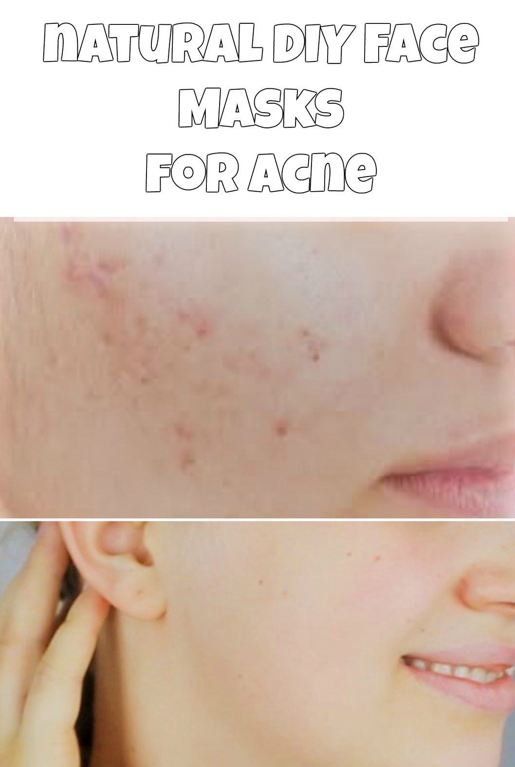 Natural diy face masks for acne diy do it yourself homemade natural diy face masks for acne diy do it yourself homemade face masks acne acne prone oily skin dry skin no more acne at home get rid of acne solutioingenieria
