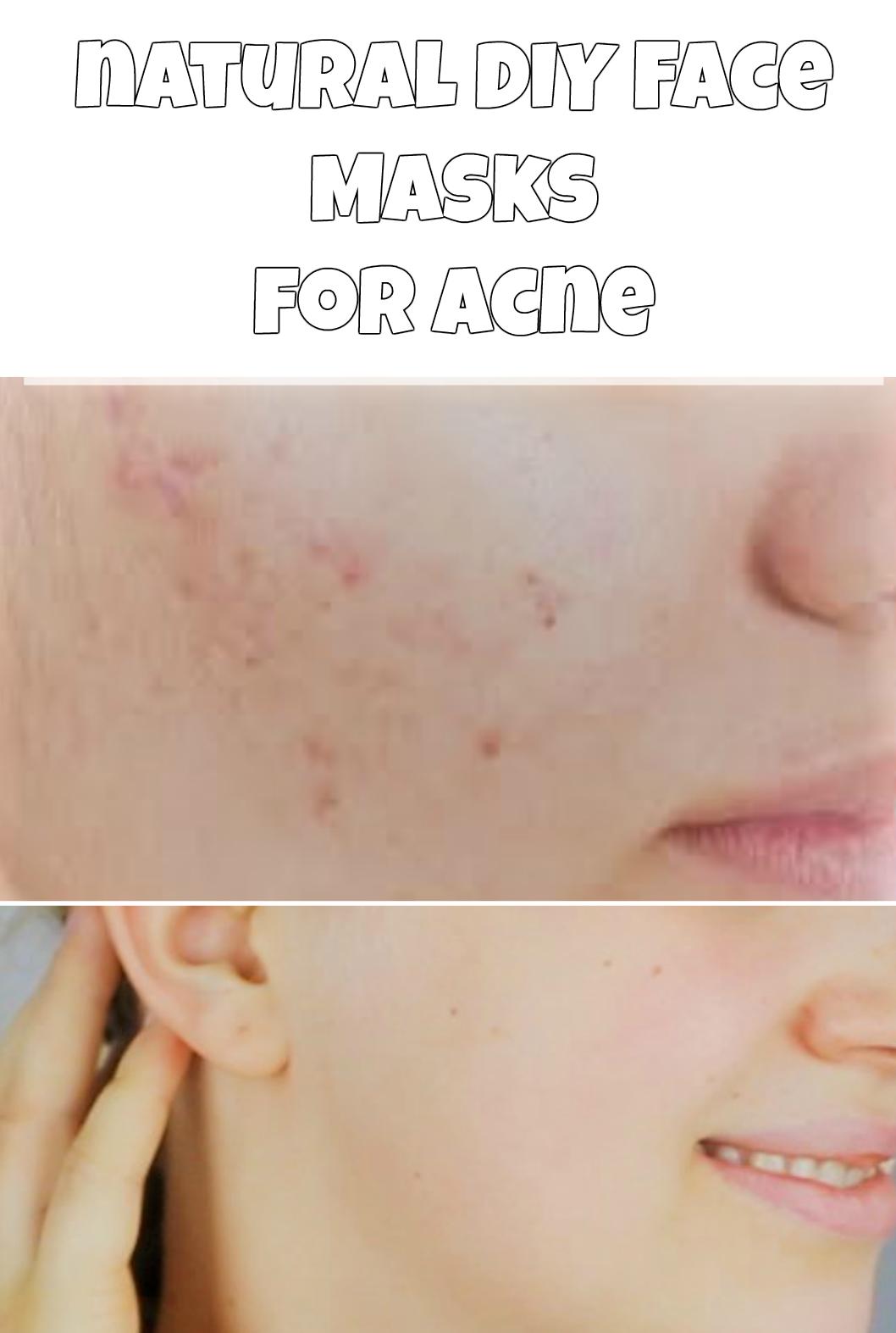 Natural diy face masks for acne diy do it yourself homemade natural diy face masks for acne diy do it yourself homemade face solutioingenieria Images