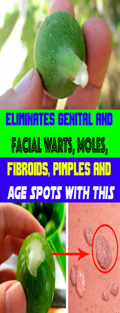 Tips on how to Remove Warts Naturally #Fitness #EasyWayToRemoveWarts
