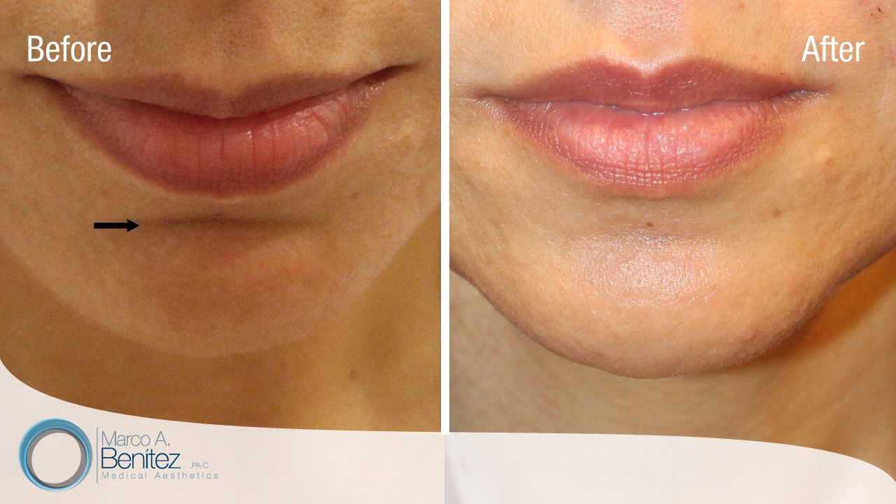 Botox / Dysport for horizontal line across the chin also known as a