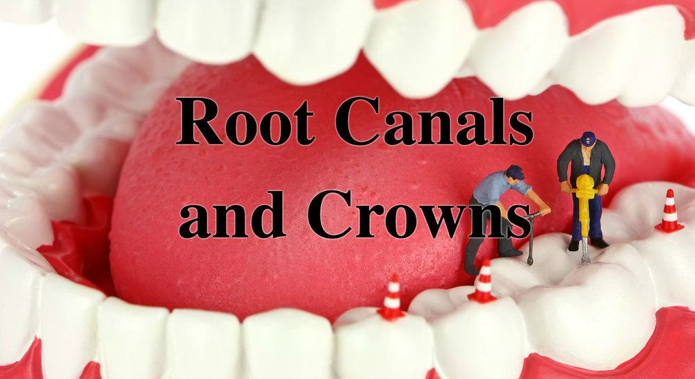 How long does it take to do a root canal on a tooth
