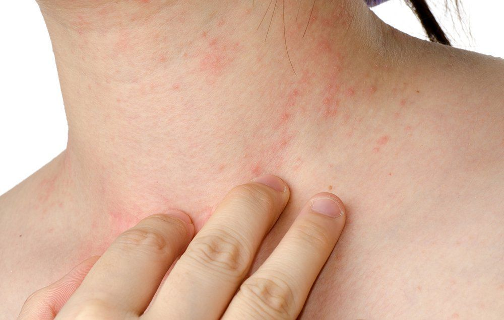 7 Best Natural Remedies For Eczema That Actually Relieve The