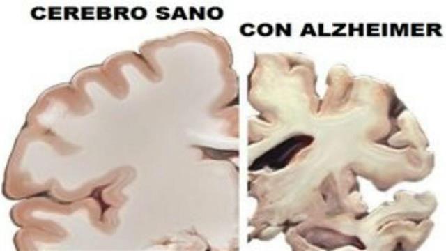Cómo prevenir la aparición del Alzheimer  Foto: Archivo