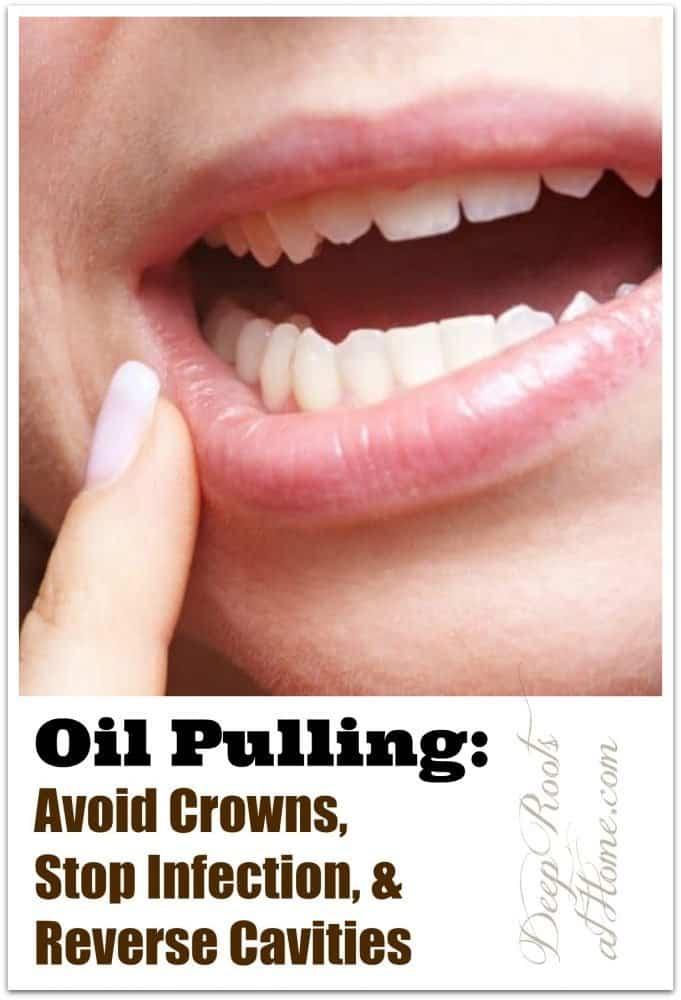 Real Life Oil Pulling: Vermeiden Sie Kronen, stoppen Sie Infektionen und Zahnfleischbluten   – Wellness