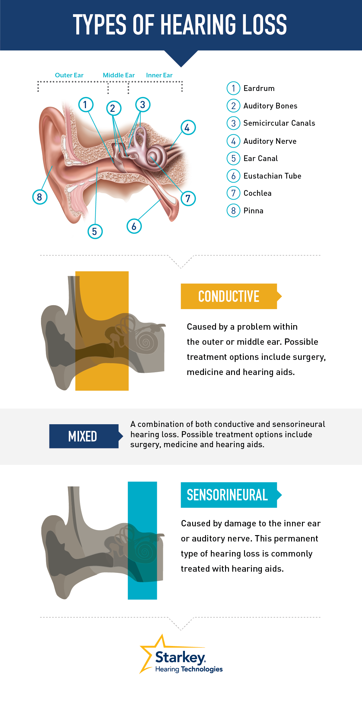 Types of hearing loss....Dr Carron said the middle ear was perfect ...