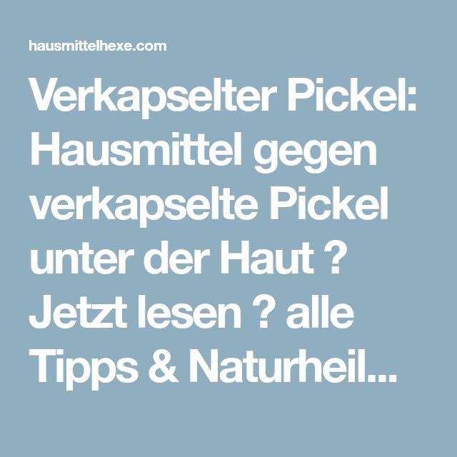 Verkapselter Pickel: Hausmittel gegen verkapselte Pickel unter der Haut → Jetzt lesen → alle Tipps & Naturheilmittel