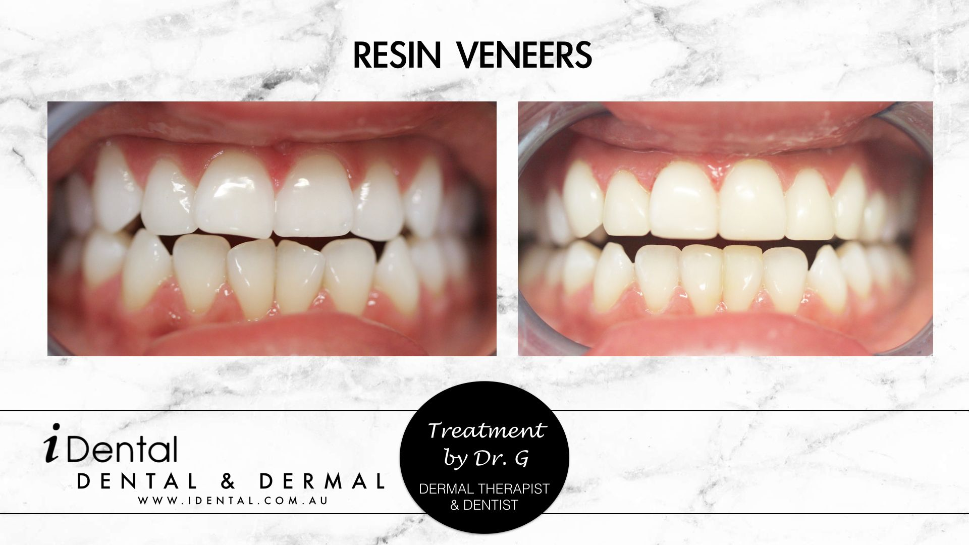 Our Aim Was To Enhance Her Beautiful Smile Creating More Symmetry And Better Flow Of The Front Teeth Cosmetic Dental Work Dental Cosmetics Cosmetic Dentistry