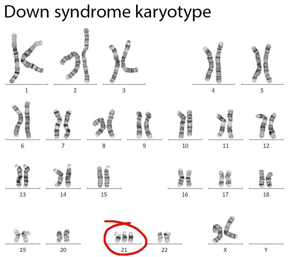 cri du chat syndrome is the result of asegmental aneuploid down syndrome karyotype google search