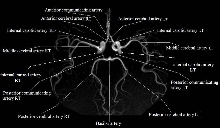 Circle Of Willis Labelled Ct Pinterest Circle Of Willis