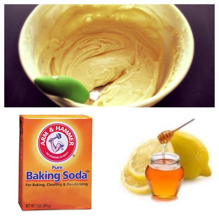 lemon juice honey and baking soda create a scrub for acne and acne scars