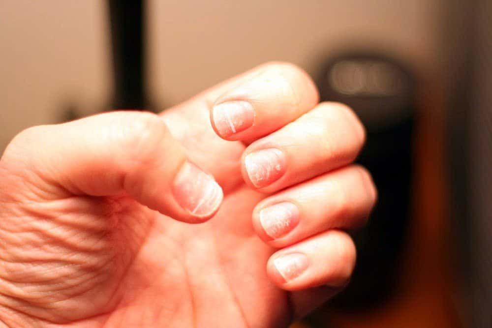 Healthy Looking Fingernails After Removing Acrylics Nails Remove Acrylic Nails Nail Repair Healthy Nails
