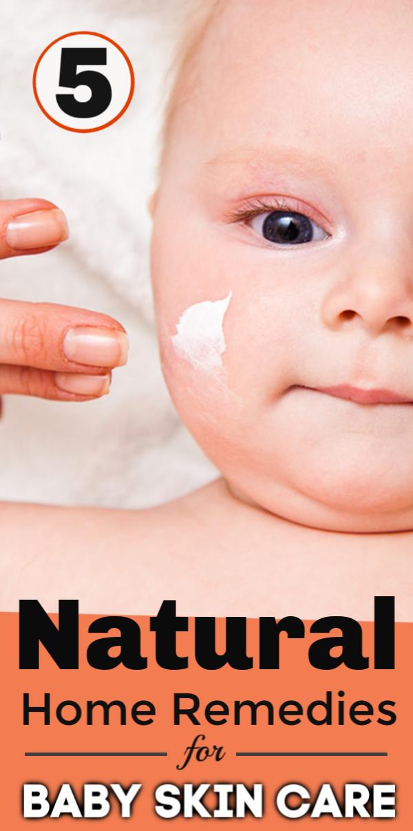Pin On Baby Skin Care