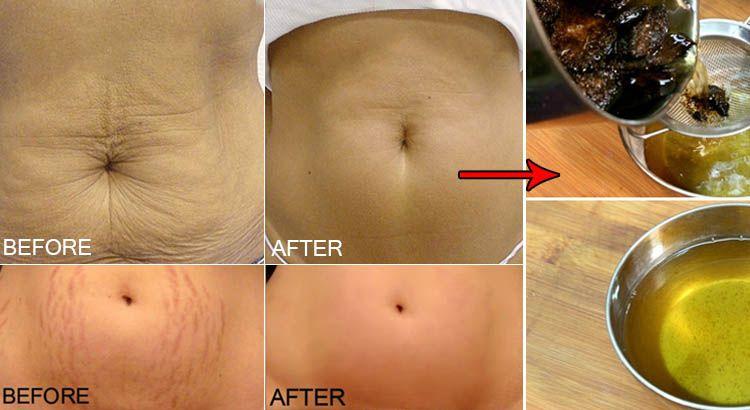 Remove Stretch Marks: Women often go for chemical based ...
