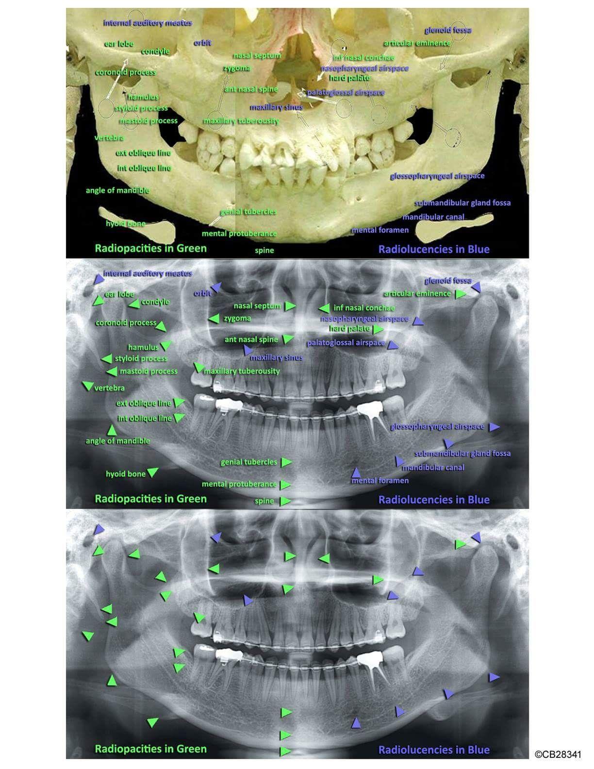 – Dental