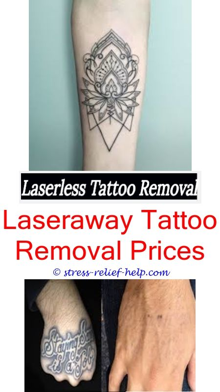 Laser Tattoo Removal Does At Home Tattoo Removal Work Tattoo Removal Bay Area Tattoo