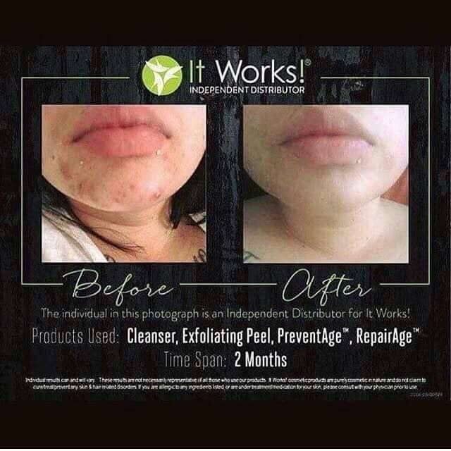 So much more than just WRAPS! After just 2 months of consistent use of our amazing skin care line her redness & acne is completely gone! #skin #beauty #love #skincare #beautiful #acne #face #iloveskincare