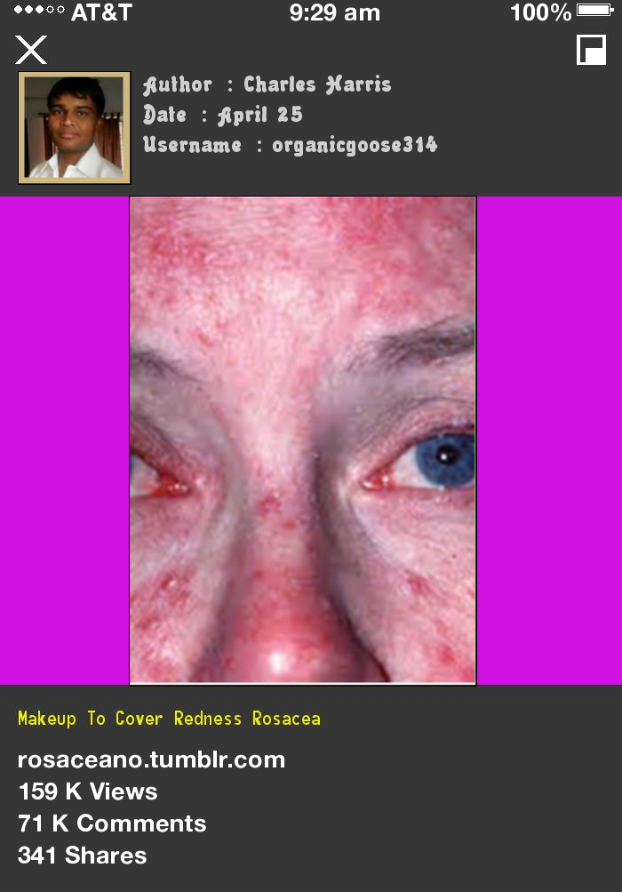 Makeup To Cover Redness Rosacea 085316 Rosacea Free Forever.