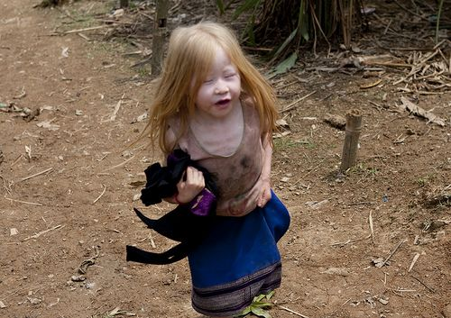 Albinism in Asia