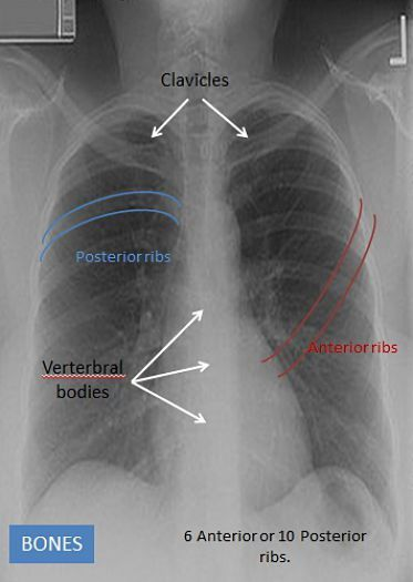 The various bony structures in the chest x-ray FNP Pinterest