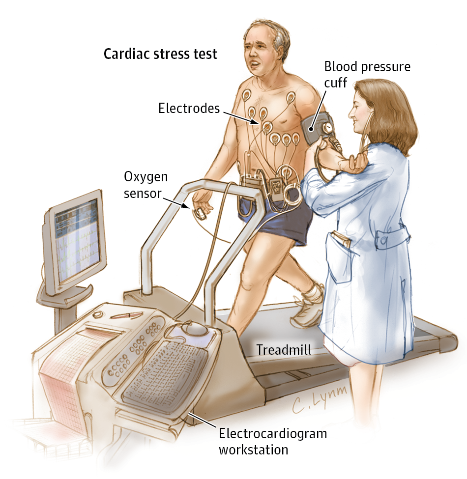 Should I Have An Exercise Stress Test Jama Cardiol Published Online November 2 2016 Doi 10 1001 Jamacardio 2016 37 Stress Tests No Equipment Workout Stress