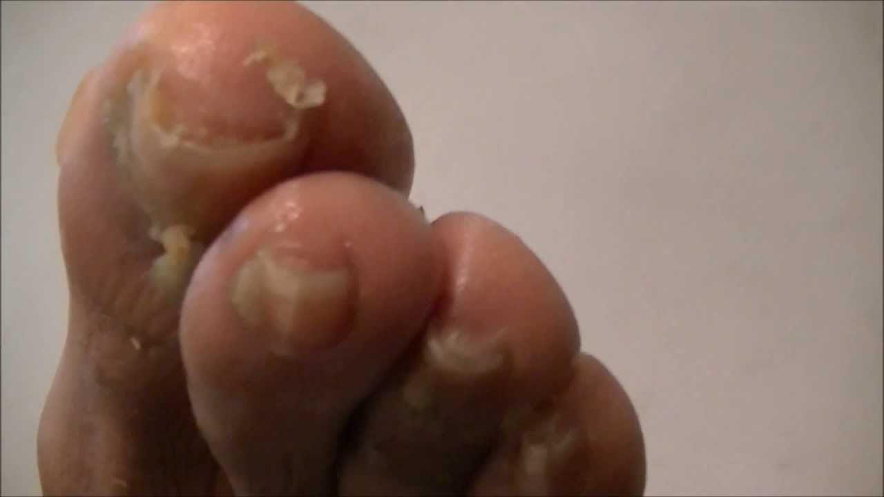 Home Remedy for Toenail Fungus u Athleteus Foot  Natural Fungus