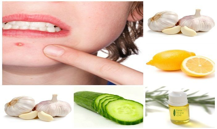 Do You Really Want To Know How To Get Rid Of Pimples
