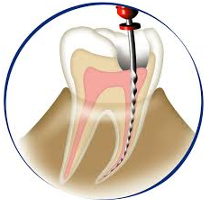 ✌Root Canal Treatment✌ 𝘙𝘰𝘰𝘵 𝘤𝘢𝘯𝘢𝘭 𝘵𝘩𝘦𝘳𝘢𝘱𝘺 𝘩𝘢𝘴 𝘨𝘰𝘯𝘦 𝘩𝘪𝘨𝘩-𝘵𝘦𝘤𝘩 𝘳𝘦𝘤𝘦𝘯𝘵𝘭𝘺, 𝘮𝘢𝘬𝘪𝘯𝘨 𝘵𝘩𝘦 𝘱𝘳𝘰𝘤𝘦𝘥𝘶𝘳𝘦 𝘢𝘴 𝘦𝘢𝘴𝘺 𝘢𝘴 𝘱𝘰𝘴𝘴𝘪𝘣𝘭𝘦 𝘧𝘰𝘳 𝘣𝘰𝘵𝘩 𝘱𝘢𝘵𝘪𝘦𝘯𝘵𝘴 𝘢𝘯𝘥 𝘥𝘦𝘯𝘵𝘪𝘴𝘵𝘴!