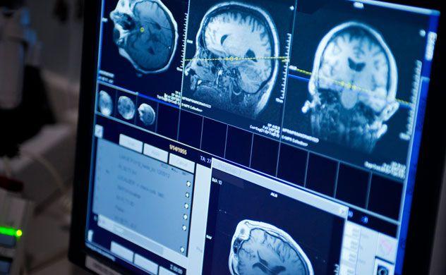 brain-tumor-mri-632.jpg (632×390)