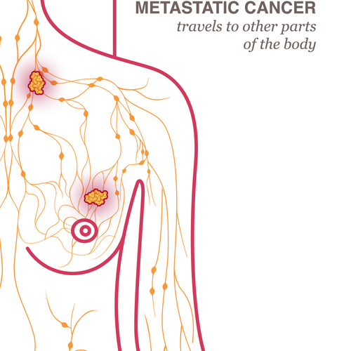 A tumor is a mass of abnormal tissue. There are two types of breast cancer  tumors: those that are non-cancerous, or %u2018benign%u2019, and those that  are ...