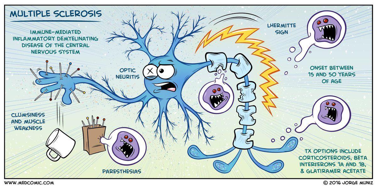 Embedded Esclerosis Multiple Esclerosis Esclerosis Multiple Diagnostico