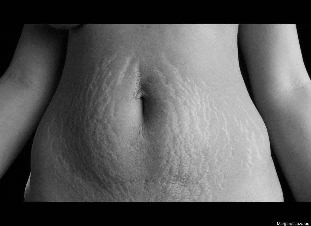 Can Moms saggy tits stretch marks