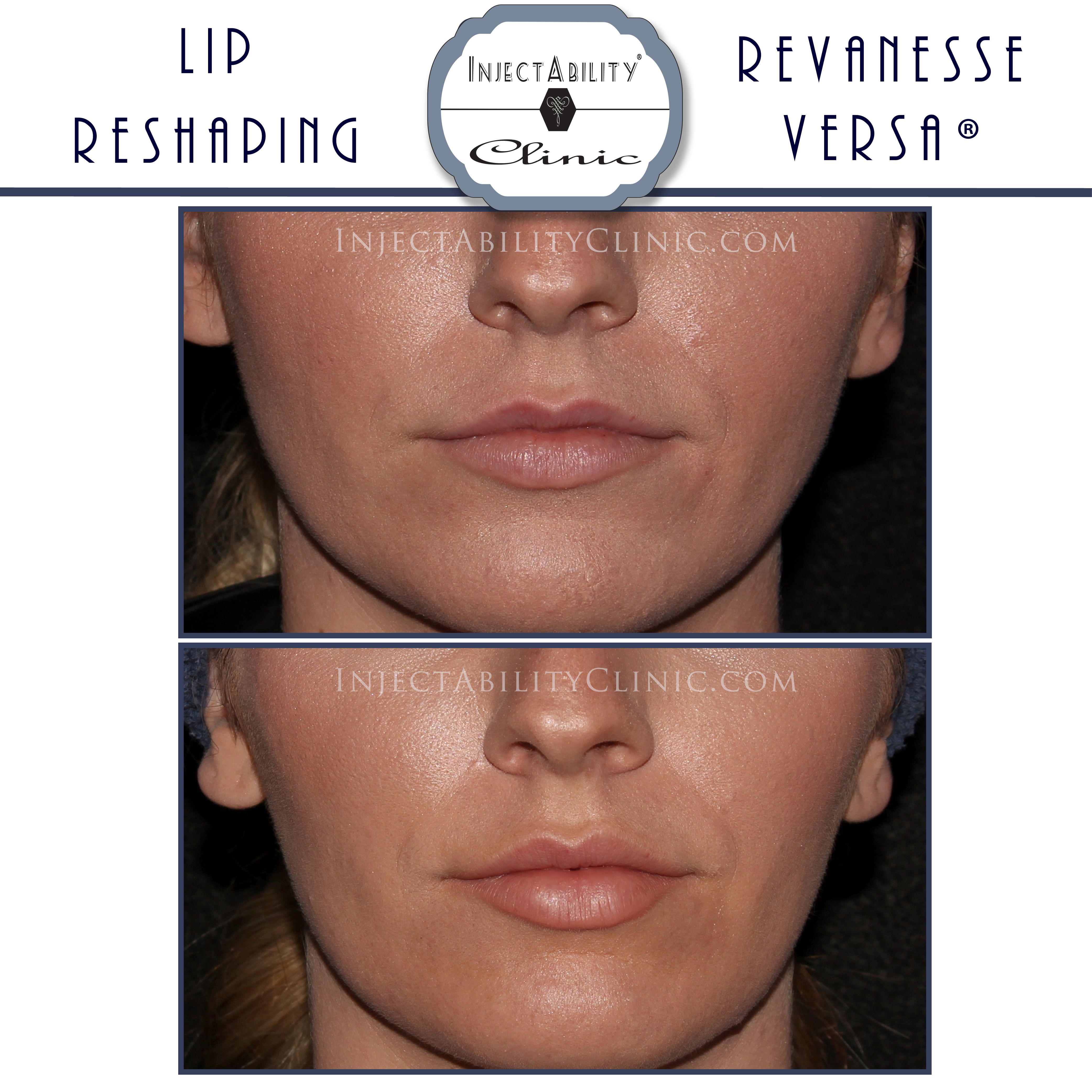 Revanesse versa before and after InjectAbility clinic | Before and