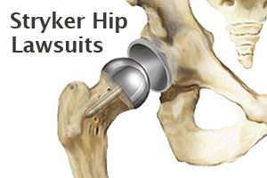 Stryker Hip Replacet Lawsuit Lawyers at Wright & Schulte LLC ...