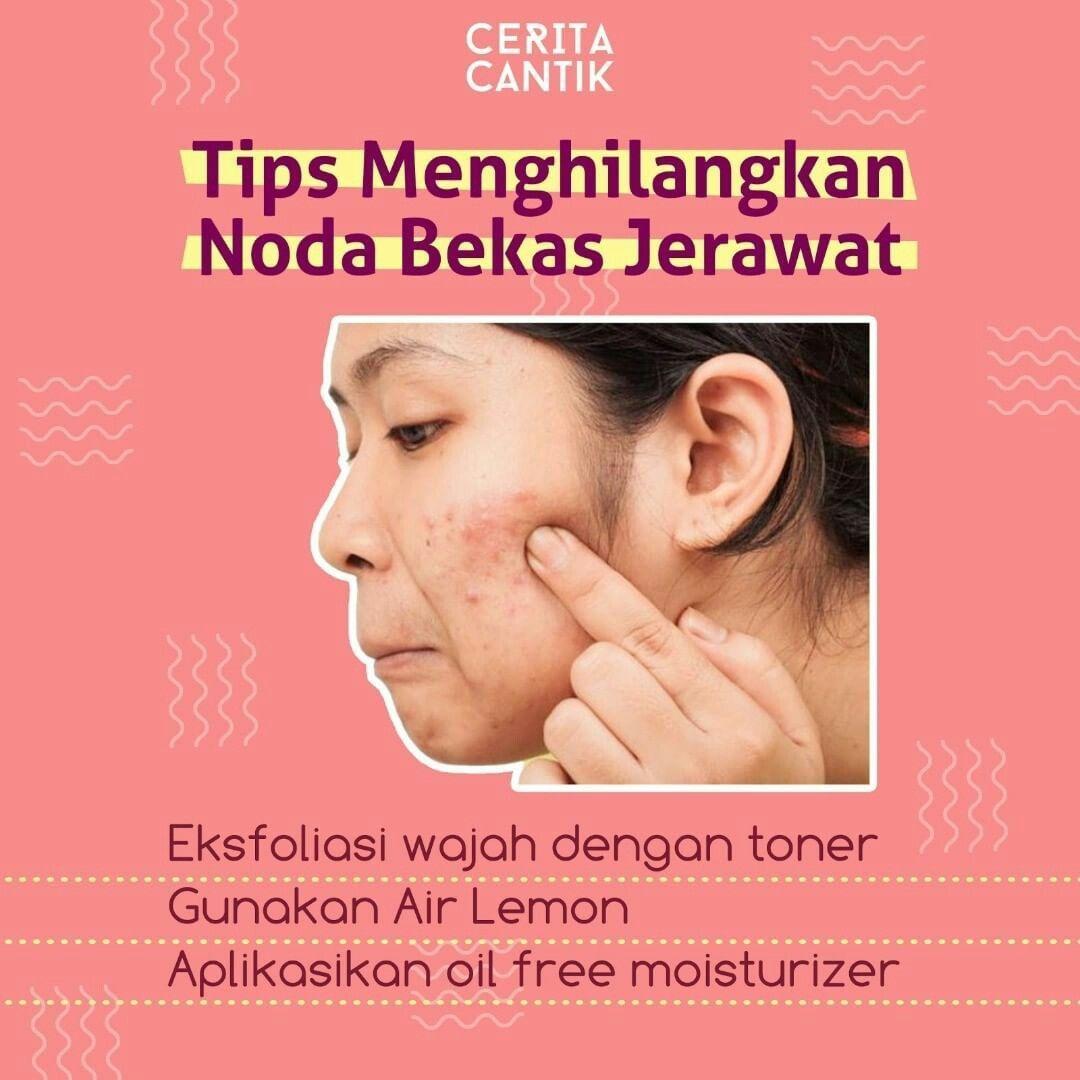 Skin Care Untuk Menghilangkan Noda Bekas Jerawat