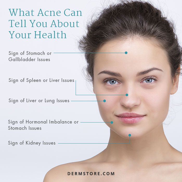 251162dcb49c If you re suffering from breakouts, the cause of your acne could be more  than skin deep. In fact, according to Chinese medicine, the complexion may  provide ...