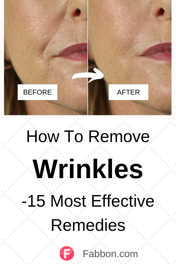 15 Most Effective Home Remedies For Wrinkles Home Remedies For Wrinkles Anti Aging Remedies Wrinkles