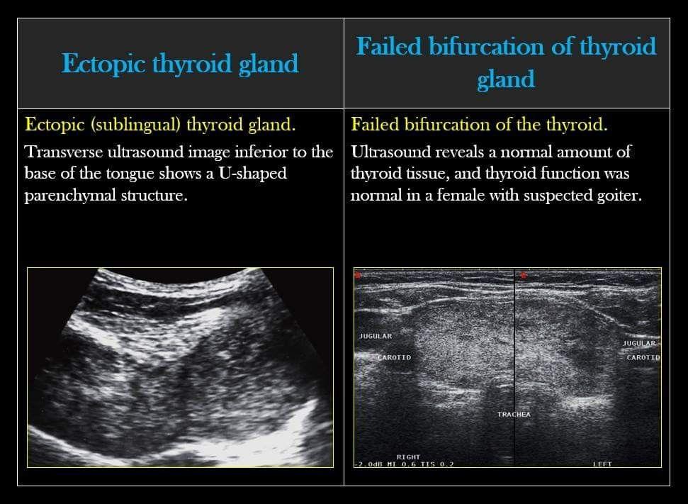 Pin By Erika G Valdivia On Ultrasound Thyroid Ultrasound